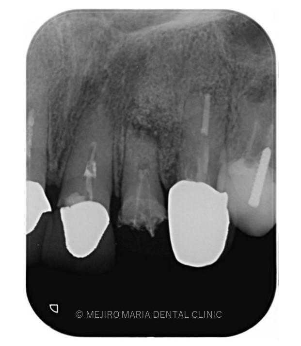 目白マリア歯科【症例】根尖部に充填された人工骨の感染により根尖性歯周炎が難治化。歯内療法(精密根管治療)でのリカバリー_治療前感染した人工骨が確認できるレントゲン画像