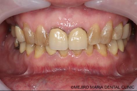 目白マリア歯科【症例】チーム医療で行った全顎的な治療:精密根管治療による歯の保存と咬合崩壊を防ぐインプラント治療|治療前の前歯部の画像_治療前1-1