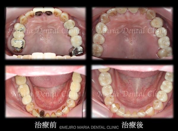 目白マリア歯科|【症例】チーム医療で行った全顎的な治療:精密根管治療による歯の保存と咬合崩壊を防ぐインプラント治療|治療前後の歯の比較画像_メイン1