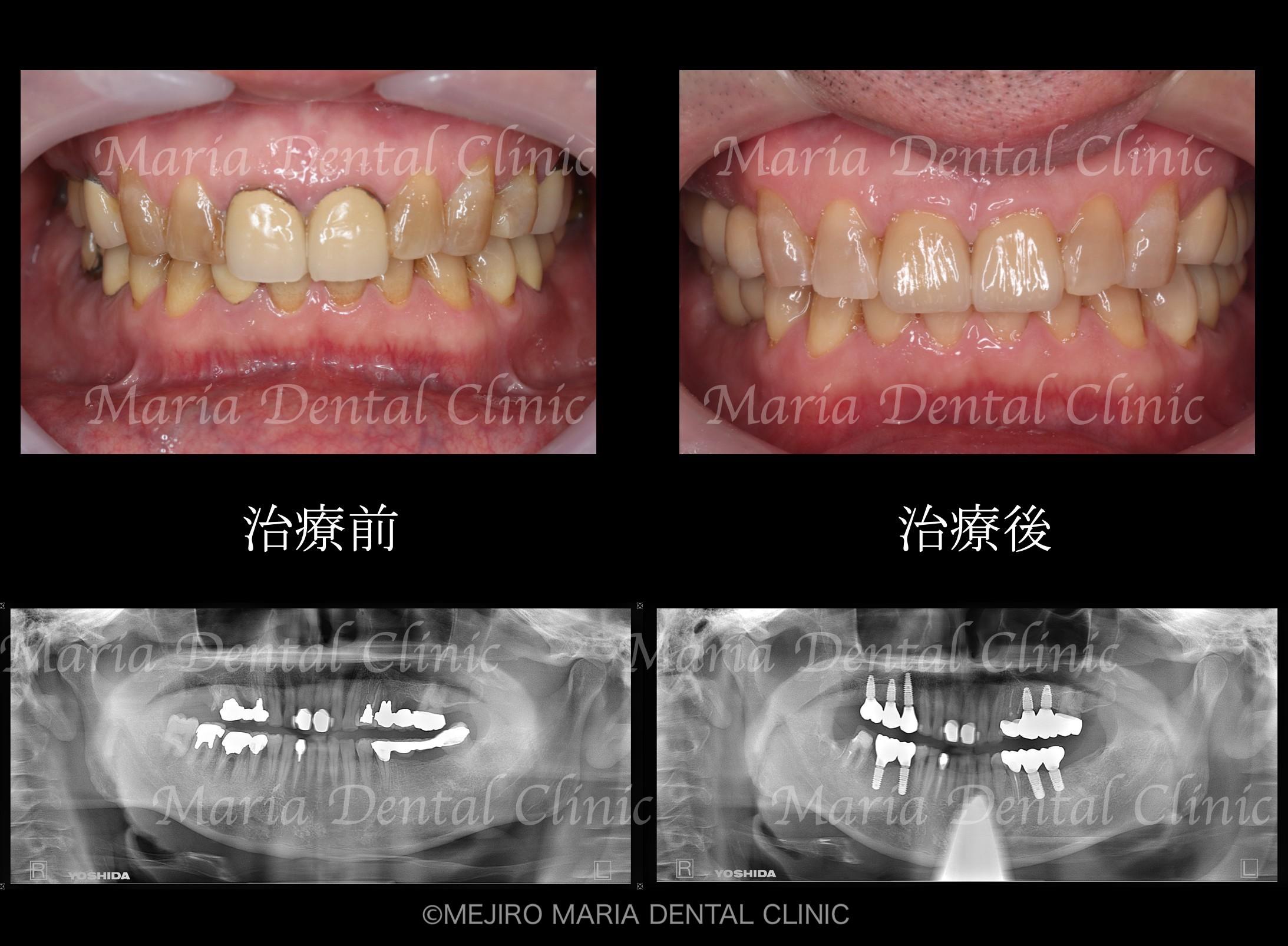 目白マリア歯科【症例】チーム医療で行った全顎的な治療:精密根管治療による歯の保存と咬合崩壊を防ぐインプラント治療|治療前後の歯の比較画像_メイン2-1