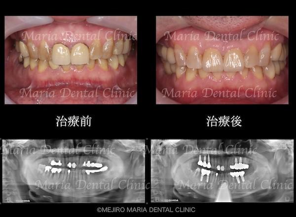 目白マリア歯科|【症例】チーム医療で行った全顎的な治療:精密根管治療による歯の保存と咬合崩壊を防ぐインプラント治療|治療前後の歯の比較画像_メイン2