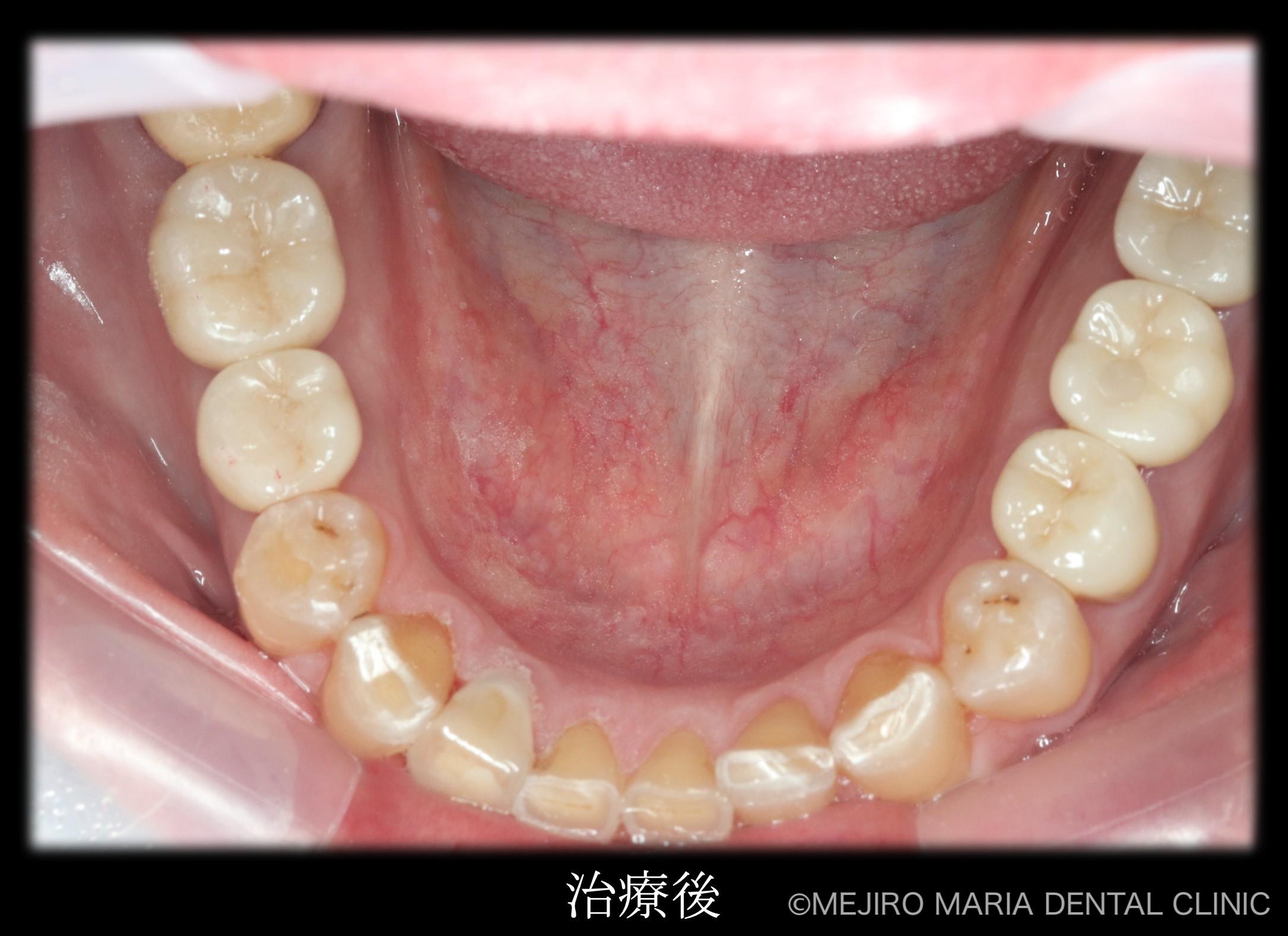 目白マリア歯科【症例】チーム医療で行った全顎的な治療:精密根管治療による歯の保存と咬合崩壊を防ぐインプラント治療|治療後の下部の歯の画像_治療後3