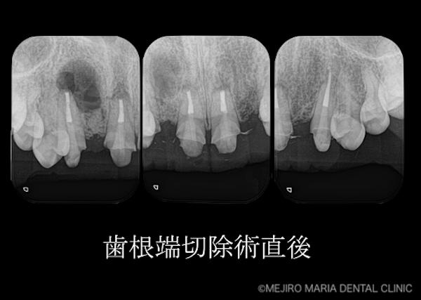 目白マリア歯科 【症例】・根管治療だけでは治癒に至らない歯を歯根端切除術で保存 歯根端切除術直後のレントゲン画像 治療詳細2