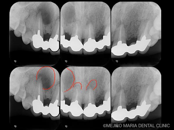 目白マリア歯科 【症例】・根管治療だけでは治癒に至らない歯を歯根端切除術で保存 治療前のレントゲン画像 治療前1