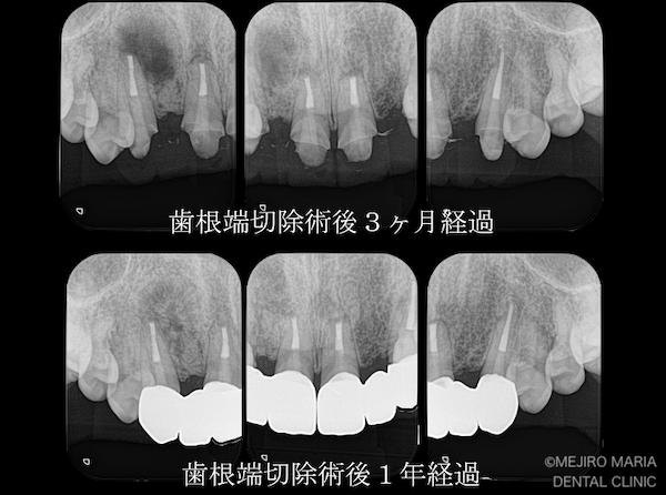 目白マリア歯科 【症例】・根管治療だけでは治癒に至らない歯を歯根端切除術で保存 治療後3ヶ月と1年経過後のレントゲン画像 治療後1