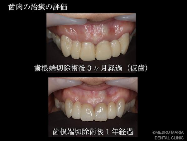 目白マリア歯科 【症例】・根管治療だけでは治癒に至らない歯を歯根端切除術で保存 治療後3ヶ月と1年経過後の歯肉の比較画像 治療後2
