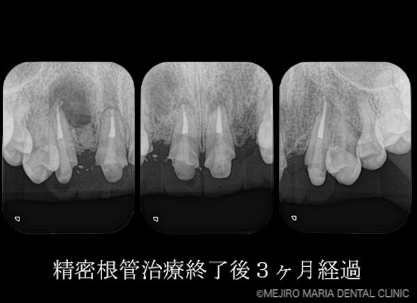 目白マリア歯科 【症例】・根管治療だけでは治癒に至らない歯を歯根端切除術で保存 治療後3ヶ月経過後のレントゲン画像 治療詳細1