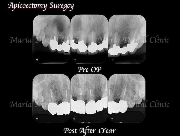 目白マリア歯科 【症例】・根管治療だけでは治癒に至らない歯を歯根端切除術で保存 術前後の比較 メイン画像 