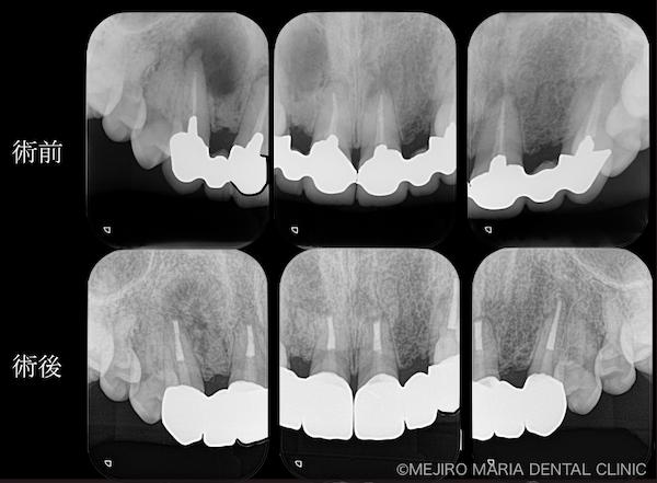 目白マリア歯科|【症例】・根管治療だけでは治癒に至らない歯を歯根端切除術で保存|術前後の比較|メイン画像|