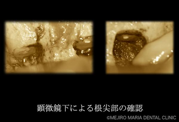 目白マリア歯科 【症例】・根管治療だけでは治癒に至らない歯を歯根端切除術で保存 顕微鏡下による歯の根尖部の確認 治療詳細3