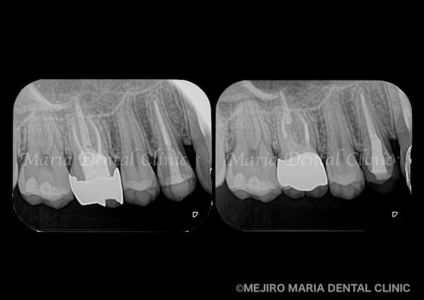 目白マリア歯科|【症例】歯性上顎洞炎(蓄膿症)を併発した根尖性歯周炎を、精密根管治療で治癒|歯のレントゲン画像_メイン