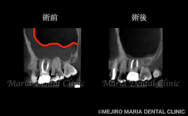 目白マリア歯科|【症例】歯性上顎洞炎(蓄膿症)を併発した根尖性歯周炎を、精密根管治療で治癒|治療前後の歯のCT比較画像_治療後2