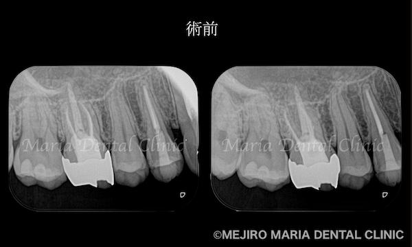 目白マリア歯科|【症例】歯性上顎洞炎(蓄膿症)を併発した根尖性歯周炎を、精密根管治療で治癒|術前の歯のレントゲン画像_治療前1