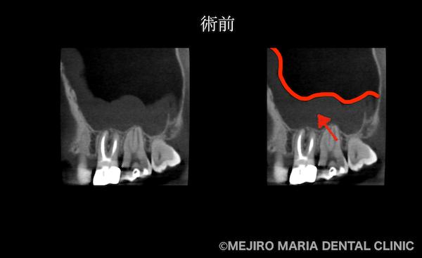目白マリア歯科|【症例】歯性上顎洞炎(蓄膿症)を併発した根尖性歯周炎を、精密根管治療で治癒|術前の歯のCT画像_治療前1